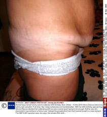 Woman buys herself tummy tuck to celebrate 50th birthday, Kent, Britain - 10 Mar 2015