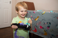 Three-Year-Old Girl Is One Of The First To Benefit From A New Soft, Customisable Prosthetic Arm