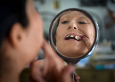 How bad teeth and a lack of dental care can lead to discrimination and poveryu