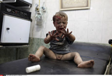 SYRIA: CHILDREN WOUNDED IN BATTLE FOR ALEPPO